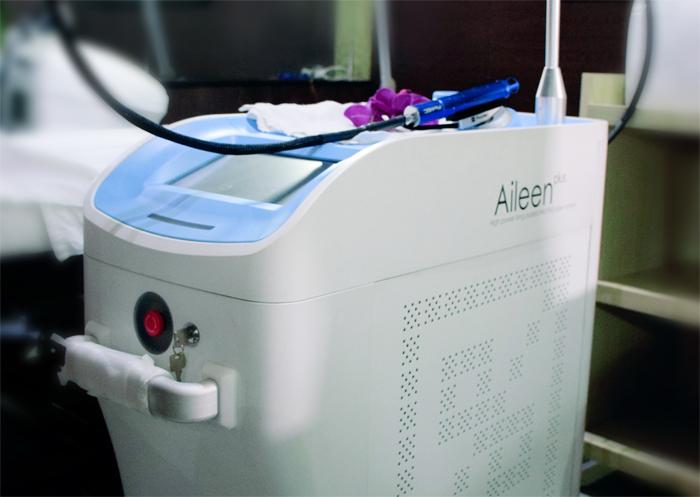 Laser Aileen giúp triệt lông hiệu quả