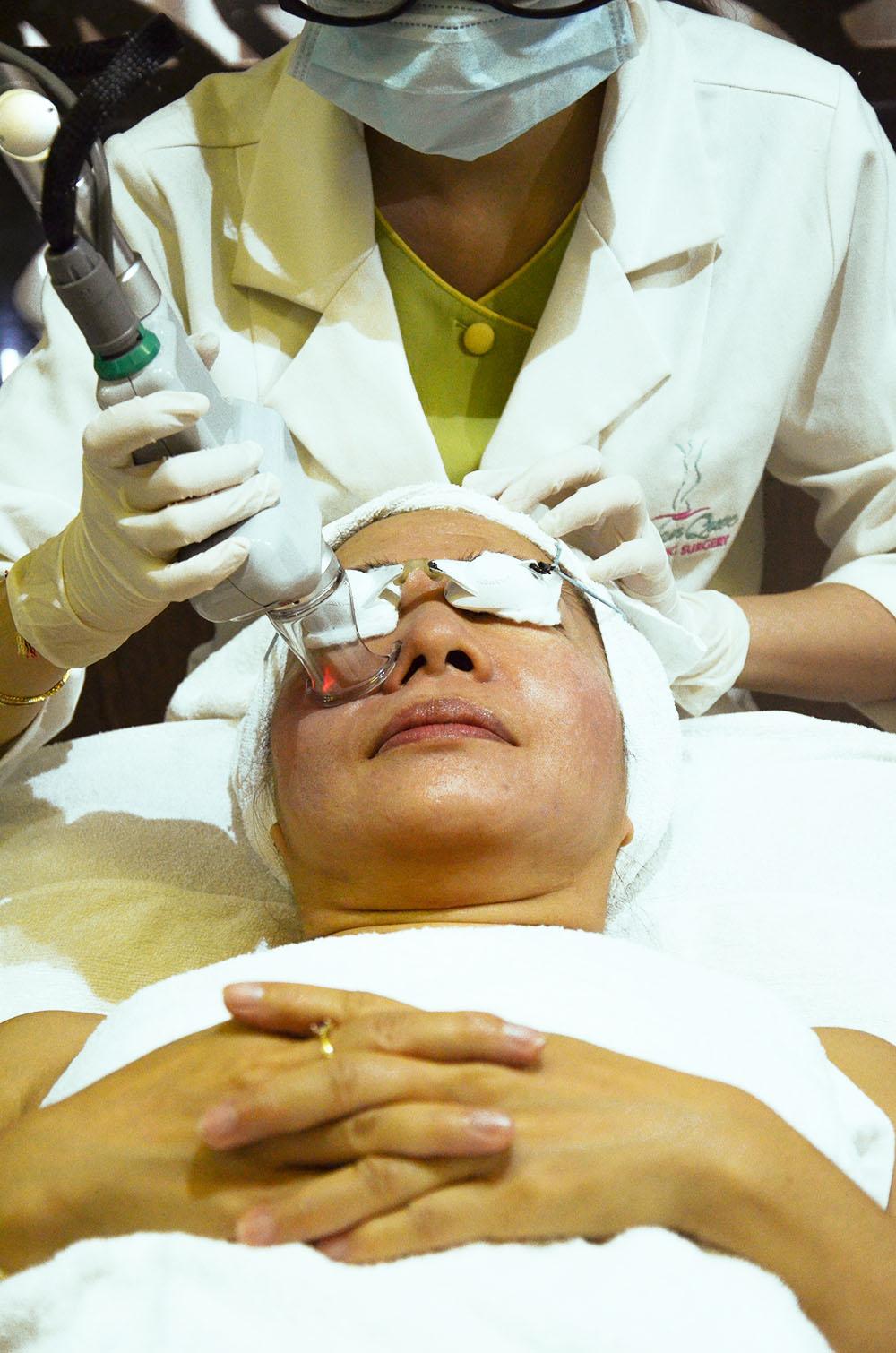 Khách hàng đang điều trị mụn đầu đen bằng Laser Aileen tại Spa JW