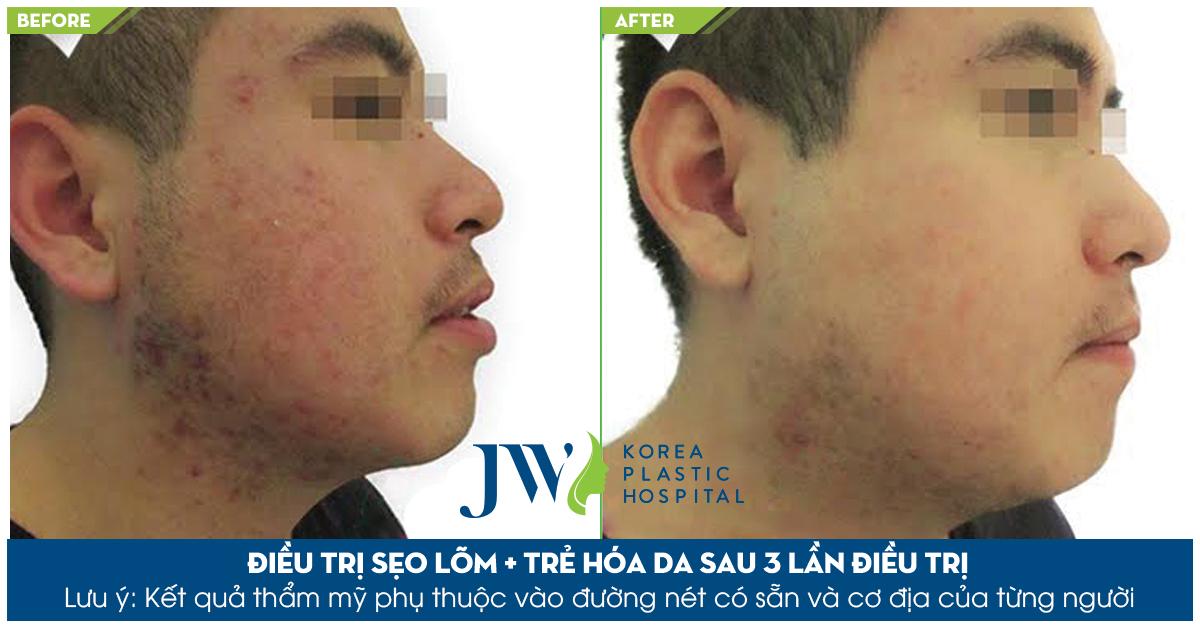 Làn da dày đặc sẹo lõm, thâm, chảy xệ sau khi được điều trị tại Skincare JW đã thay đổi hoàn toàn