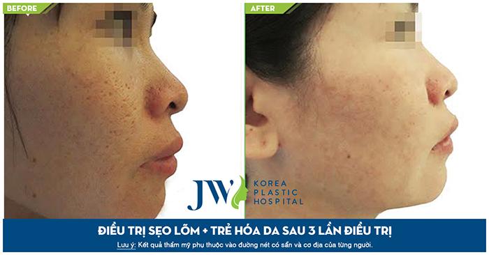 Hình ảnh trước và sau khi điều trị sẹo lõm và trẻ hóa da sau 3 lần trị