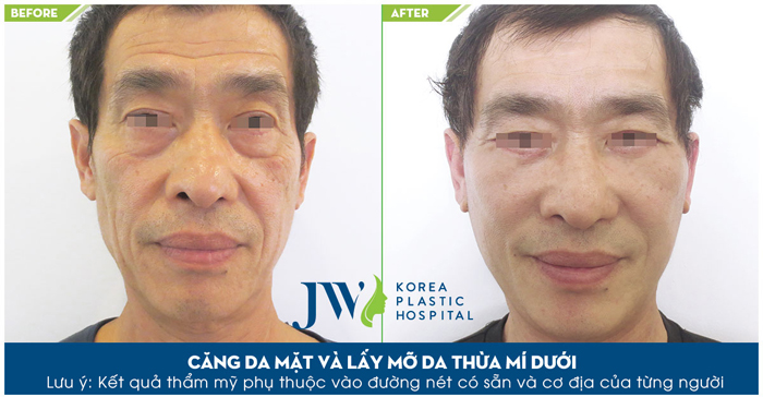 Căng da mặt giá bao nhiêu - Trước và sau