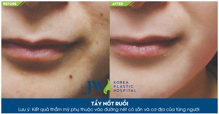 Hình ảnh trước và sau khi tẩy nốt ruồi tại Trung tâm Skin Care JW