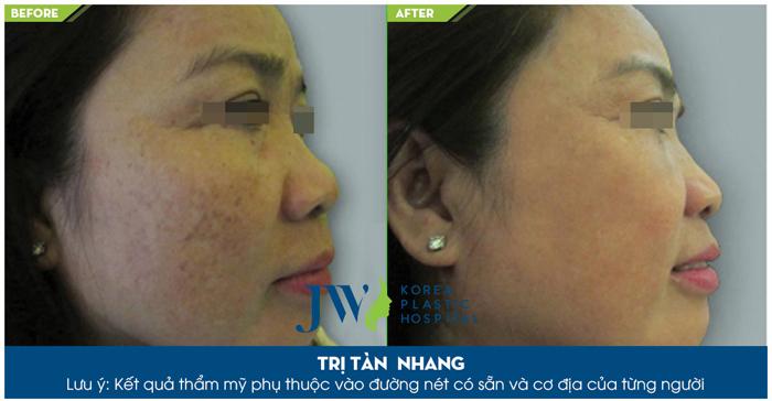 Làn da thay đổi rõ rệt sau khi trị tàn nhang tại Skincare JW
