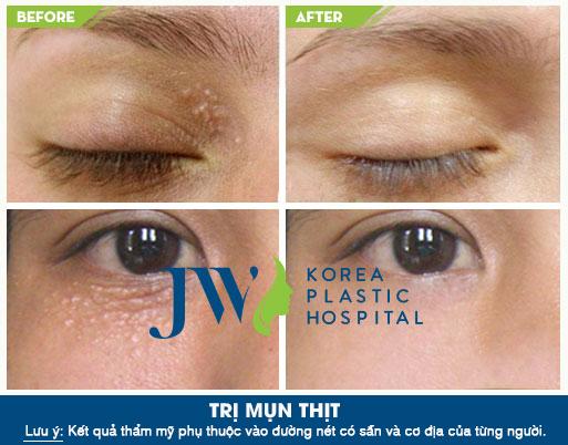Hình ảnh khách hàng trước và sau khi thực hiện trị mụn thịt tại JW