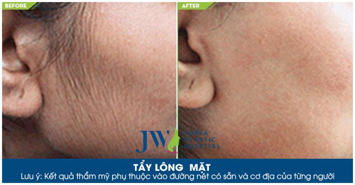 Hình ảnh trước và sau khi tẩy lông tại Skincare JW