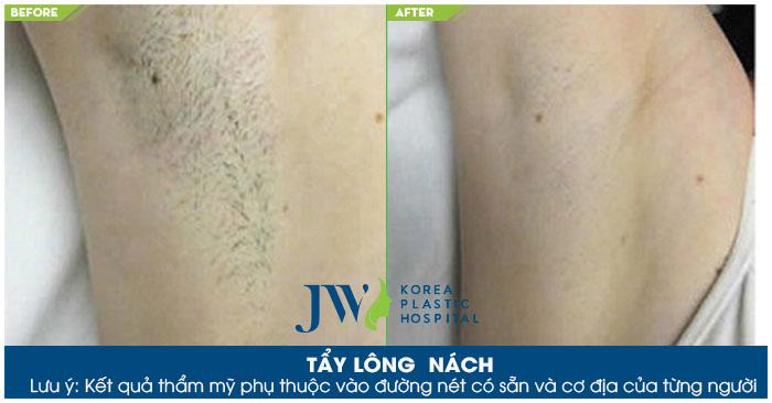 Tẩy lông nách hiệu quả lâu dài tại TP. Hồ Chí Minh bằng tia Laser