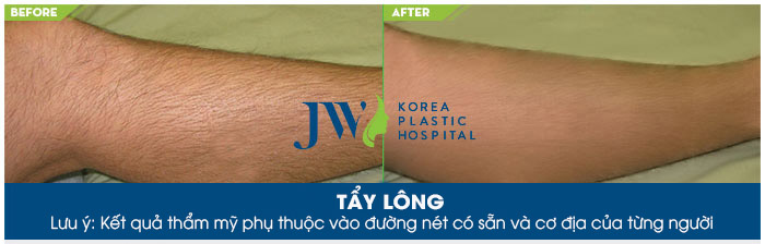 Kết quả sau khi tẩy lông chân tại Skincare JW