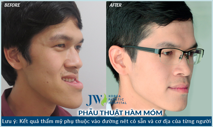 phau-thuat-ham-ho-mom-co-loi-ich-nhu-the-nao-4