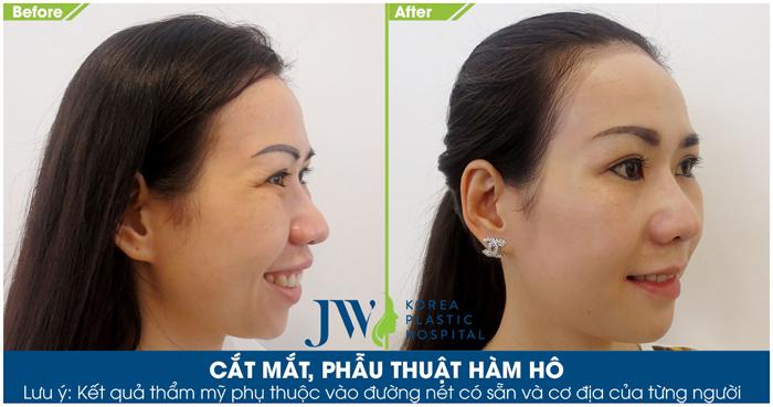 Sau phẫu thuật, gương mặt thay đổi toàn diện, xinh xắn và trẻ trung hơn thấy rõ