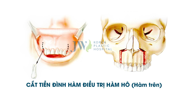 Mô phỏng cắt xương tiền đình hàm trên điều trị hô