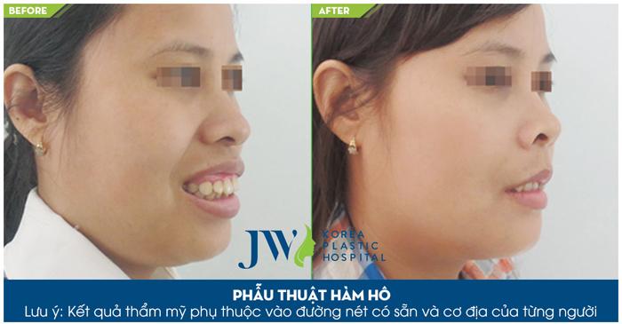 Phẫu thuật hàm đã làm thay đổi gương mặt một cách rõ rệt