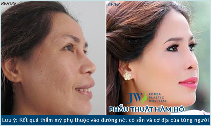Nguyen nhan va phuong phap dieu tri cuoi ho loi