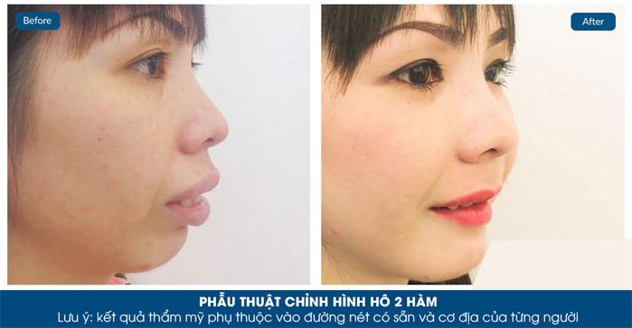 gương mặt cân đối hơn thấy rõ sau phẫu thuật hàm hô