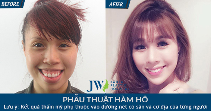 Dieu tri ham ho khong kho cung phuong phap tham my Han Quoc