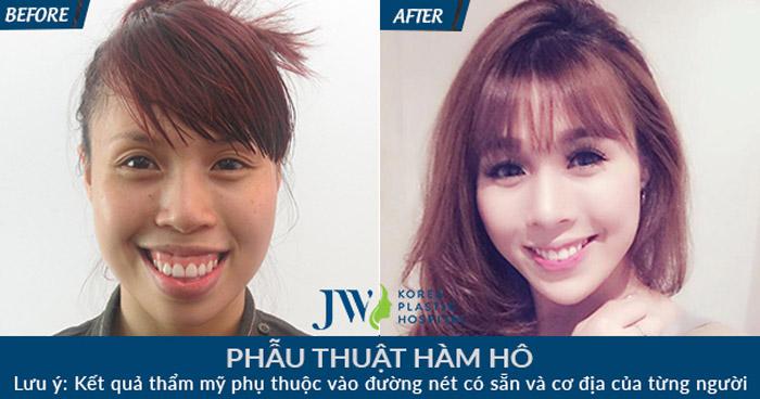 Người Việt đặc biệt quan tâm niềng răng và phẫu thuật hô, móm