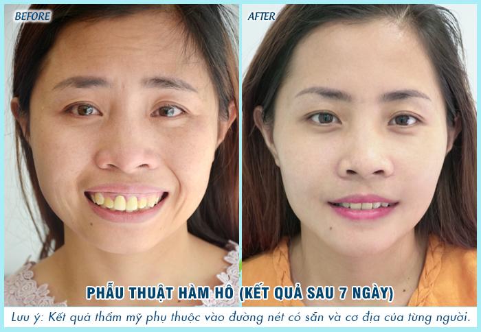 Chị Đinh Thị Trà - Người phụ nữ được chồng khiếm thị đưa đi phẫu thuật hàm hô, đã có sự khác biệt rõ rệt, khuôn mặt cân đối và hài hòa hơn