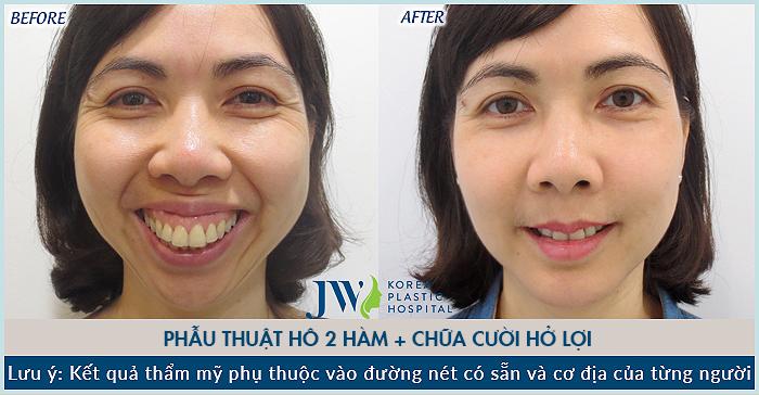 """Nữ doanh nhân tại Hà Nội bay vào Tp. HCM để phẫu thuật hàm hô với mong muốn """"được sống với chính mình"""""""