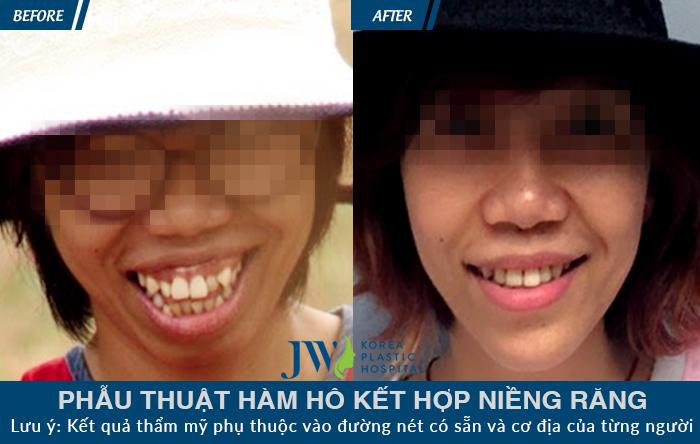 Kết quả điều trị phẫu thuật hàm hô kết hợp niềng răng