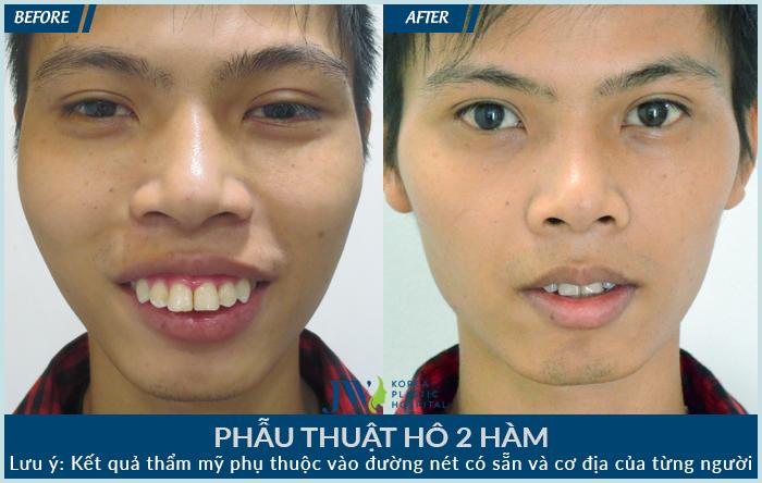 Phẫu thuật hô 2 hàm đã giúp bạn nam này trông trẻ hơn tới 5 tuổi