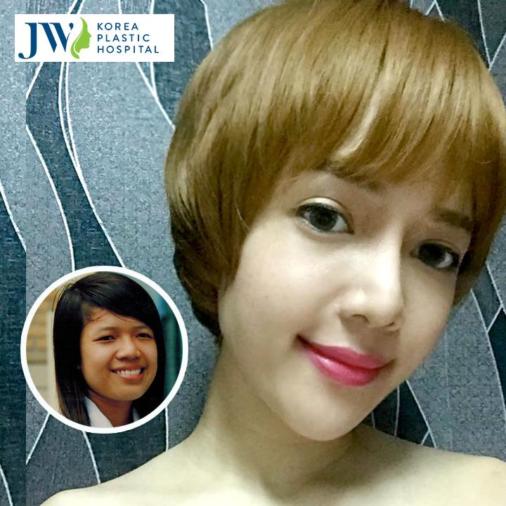 Phẫu thuật thẩm mỹ mắt ở Thái Lan
