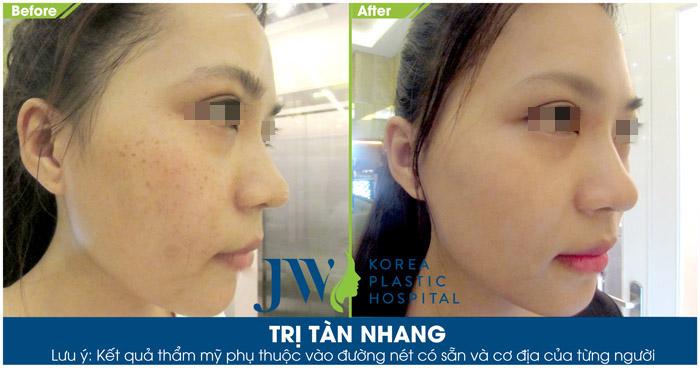 Hình ảnh thực tế của khách hàng sau khi trị tàn nhang tại Skincare JW