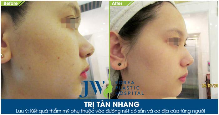 Hình ảnh sau khi trị tàn nhang tại JW