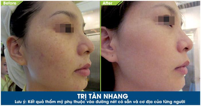 Hình ảnh khách hàng sau khi trị tàn nhang tại Skincare JW