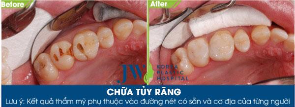 Chữa tủy răng - Trước và sau