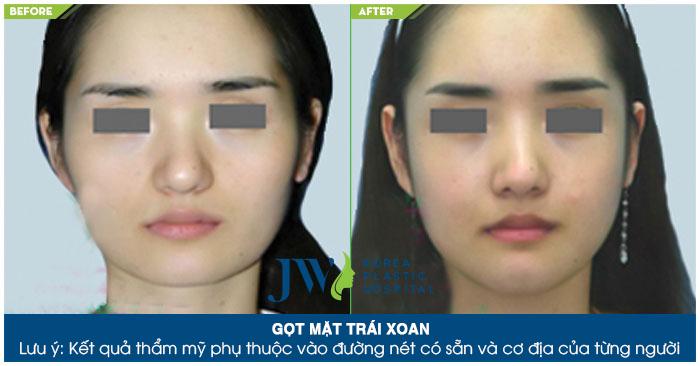 Chi phí phẫu thuật thẩm mỹ khuôn mặt