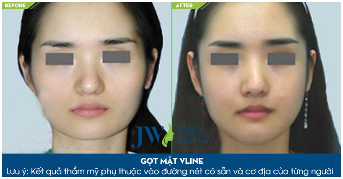 Phẫu thuật làm gương mặt thon gọn