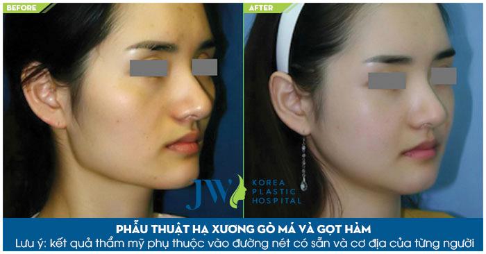 Bệnh viện nâng gò má tốt nhất tại Việt Nam