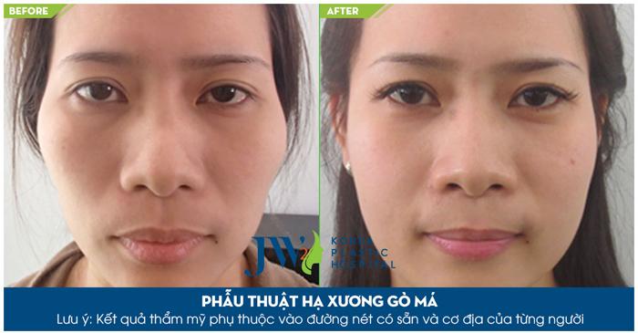 Phẫu thuật khuôn mặt bất cân xứng