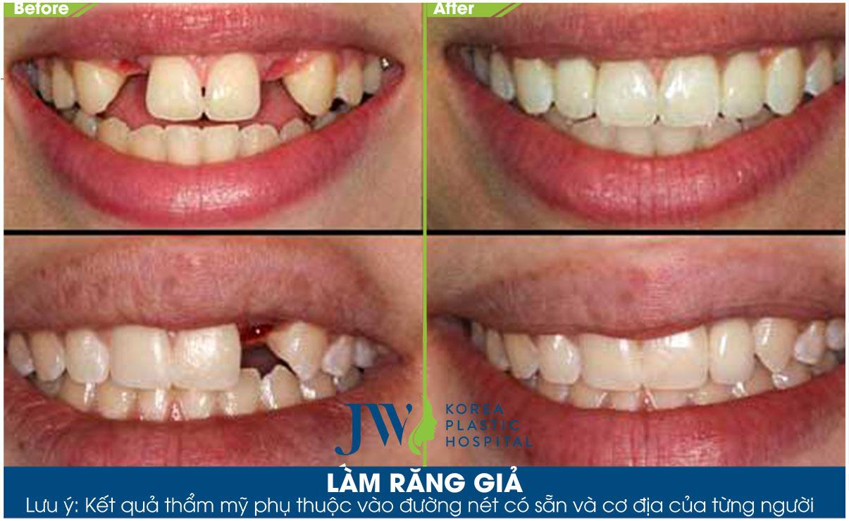 Làm răng giả - Trước và sau