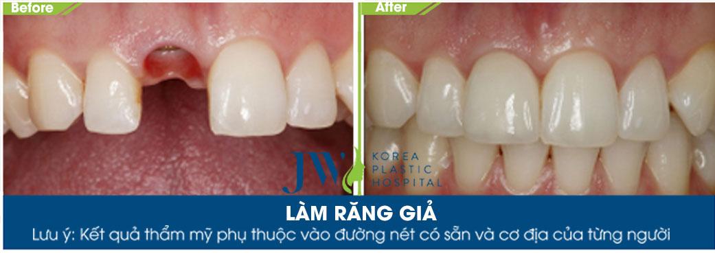 Hình ảnh khách hàng thực hiện trồng răng sứ tại JW
