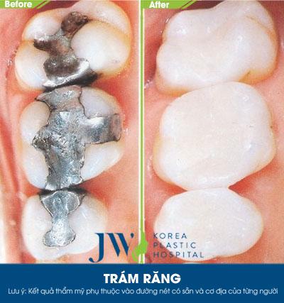 Trám răng chữa sâu răng - Trước và sau