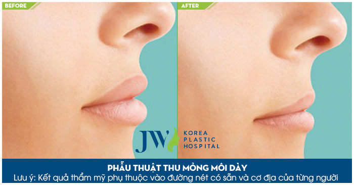 Chăm sóc sau khi thu mỏng môi - Trước và sau