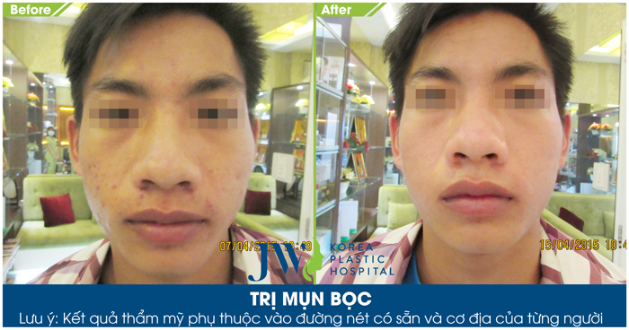 Hình ảnh trước và sau khi trị mụn bọc tại JW