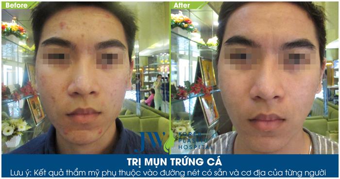 Hình ảnh trước và sau khi trị mụn trứng cá tại Skincare JW