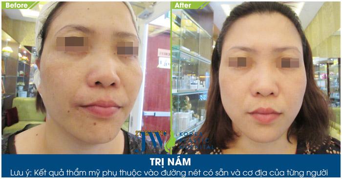 Hình ảnh trước và sau khi trị nám da bằng Neosys Laser Toning