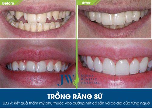 trồng răng sứ giá bao nhiêu