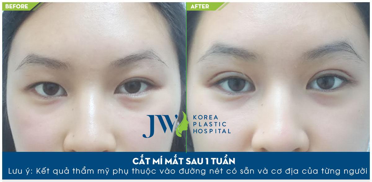 Phẫu thuật cắt mí mắt giá bao nhiêu