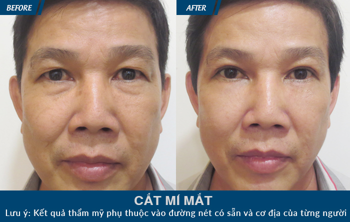 Khách hàng sau khi thực hiện cắt mí mắt tại JW
