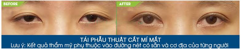 Phẫu thuật nâng cơ đuôi mắt hiệu quả chữa sụp mi