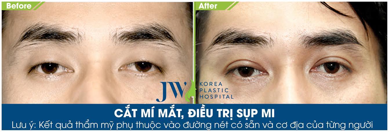 Phẫu thuật cắt mắt 2 mí cho nam giới - Trước và sau 2