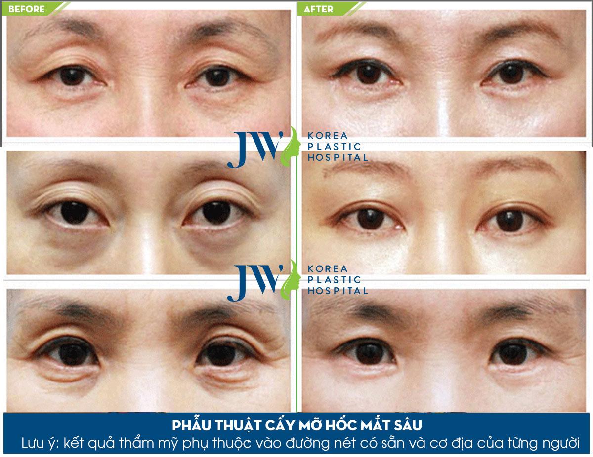 Phẫu thuật cấy mỡ hốc mắt sâu