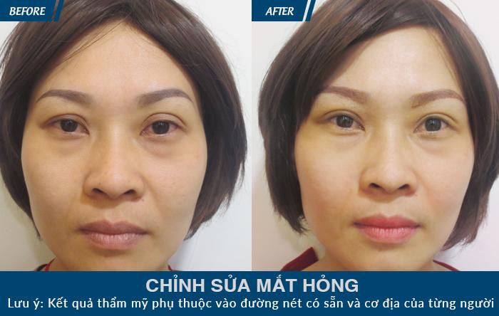 Những lưu ý sau phẫu thuật cắt mí mắt