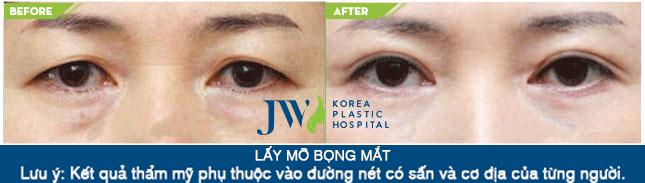 Lấy mỡ bọng mắt giá bao nhiêu - Trước và sau 1