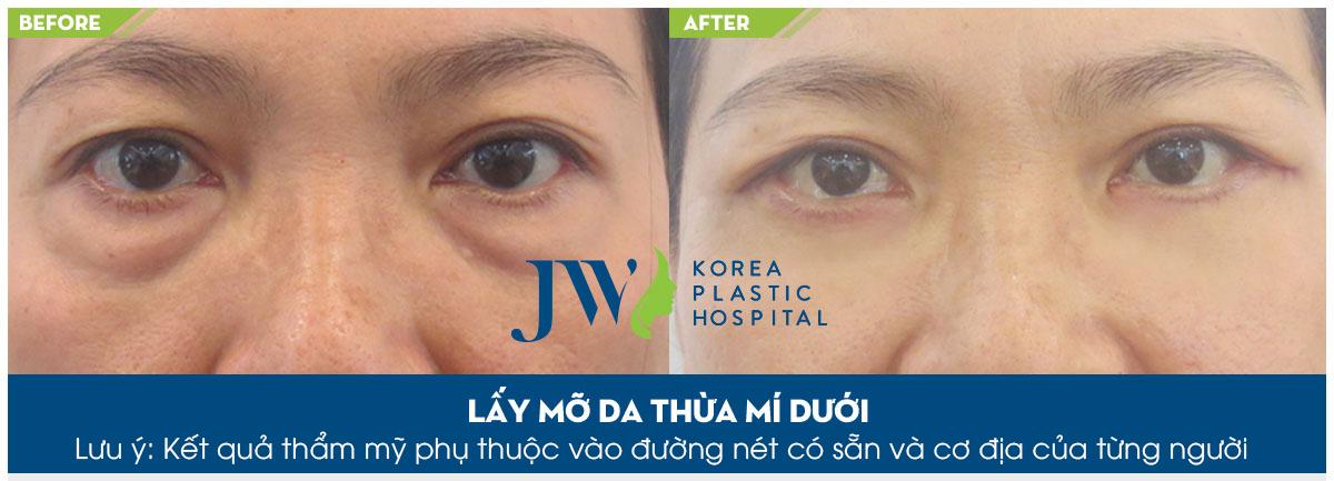 Phân biệt các loại sụp mi mắt và giải pháp khắc phục hiệu quả