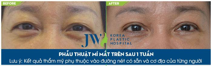 Bị sụp mí mắt phải làm sao - Trước và sau 1