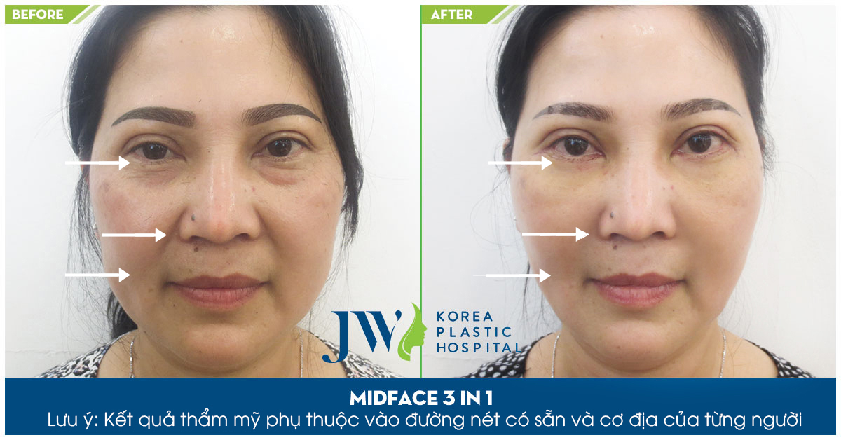 Phẫu thuật Midface - Phương pháp 3 trong 1 giúp trẻ hóa đôi mắt